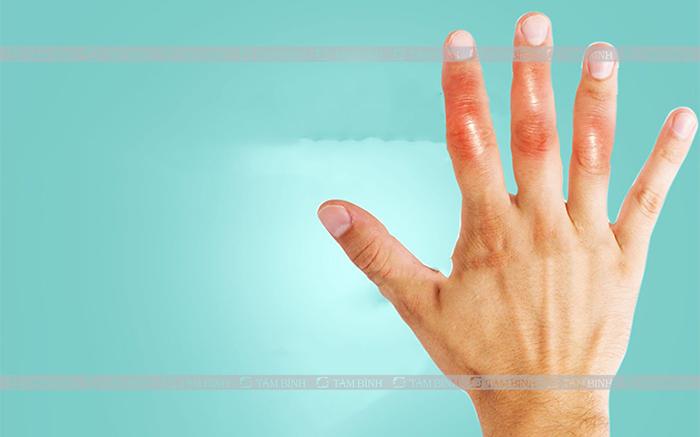 Nguyên nhân ngón tay bị sưng
