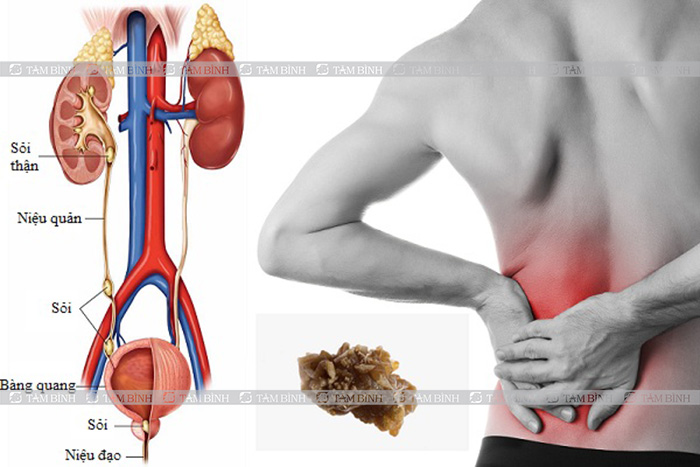 Sỏi thận gây đau xương chậu