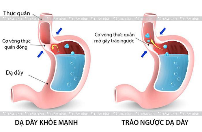 Trào ngược dạ dày thực quản gây ợ hơi buồn nôn