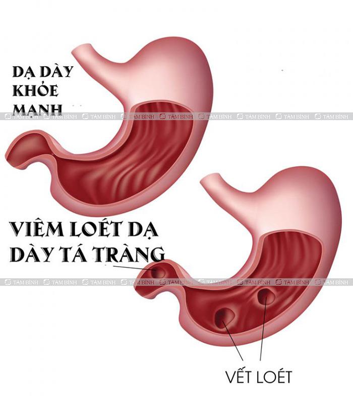 Viêm loét dạ dày là một nguyên nhân gây bệnh