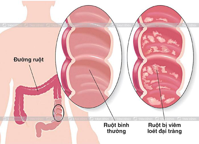 Viêm loét đại tràng là một trong những nguyên nhân gây tiêu chảy