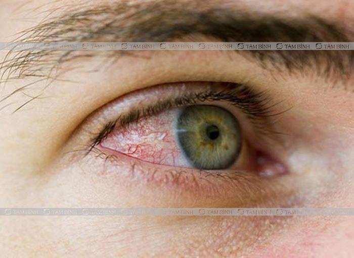 Viêm màng bồ đào là triệu chứng của viêm khớp phản ứng