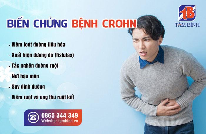 Một số biến chứng nguy hiểm của bệnh viêm ruột