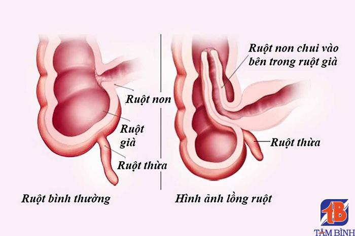 Bệnh lồng ruột gây đi phân nhầy màu đỏ