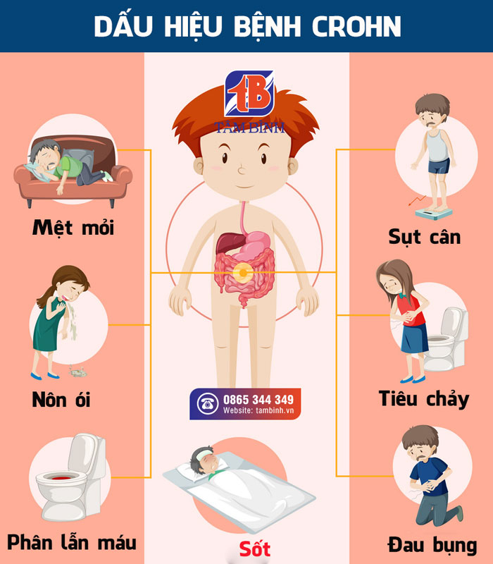 Một số triệu chứng của IBD