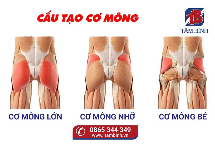 đau cơ mông là gì