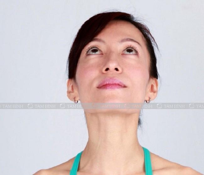 Bài tập ngửa cổ chữa thoát vị đĩa đệm cổ
