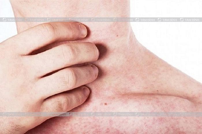 Triệu chứng cần cẩn trọng khi sử dụng thuốc nhuận tràng