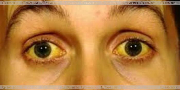Vàng da làm thay đổi màu sắc của tinh dịch