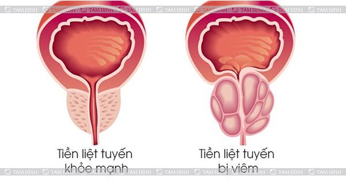 Viêm tuyến tiền liệt khiến đổi màu tinh dịch