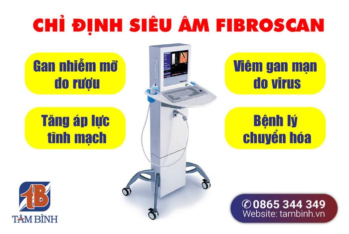 chỉ định siêu âm fibroscan