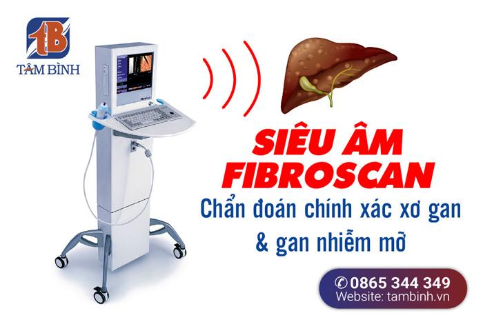 siêu âm fibroscan