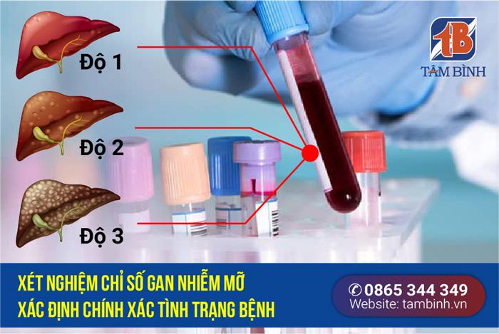 xét nghiệm chỉ số gan nhiễm mỡ