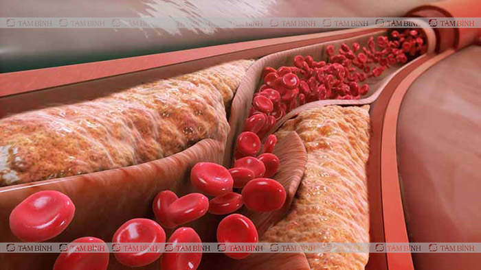 xơ vữa mạch máu
