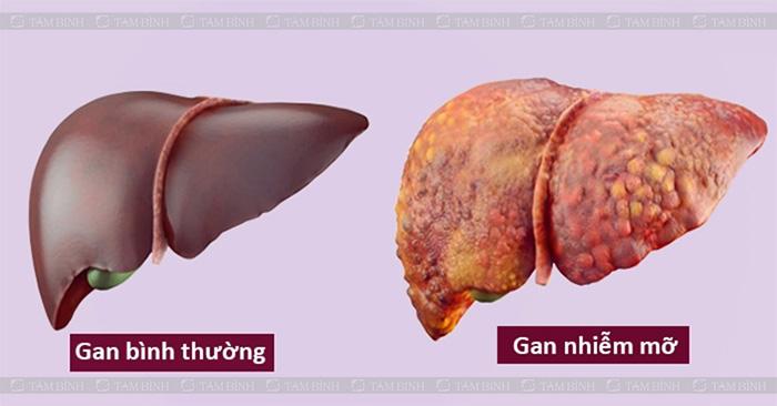 Gan nhiễm mỡ là biến chứng của mỡ máu cao