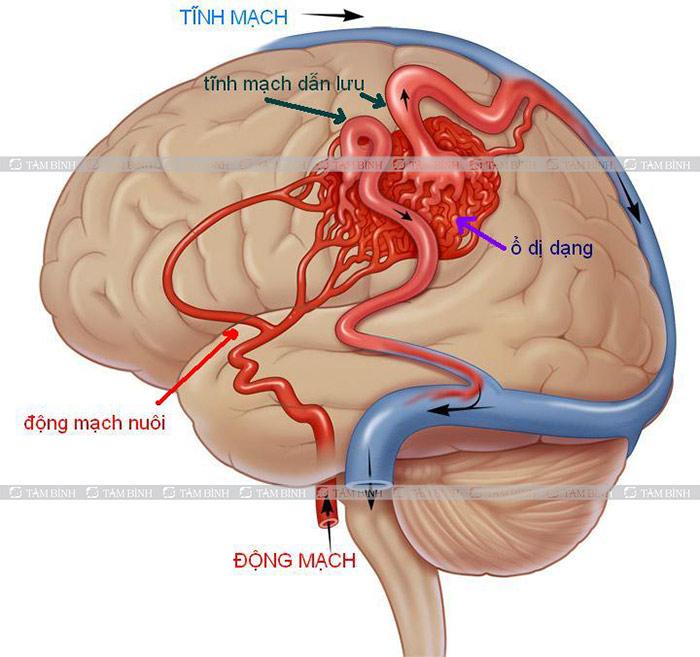 Dị dạng động tĩnh mạch não