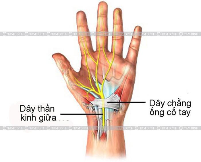 hội chứng ống cổ tay có thể gây đau cánh tayphải