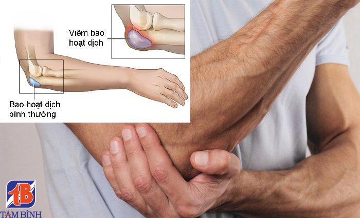viêm bao hoạt dịch gây đau cánh tay phải