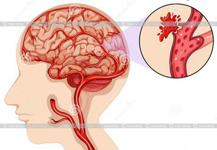 Biến chứng dị dạng mạch máu não