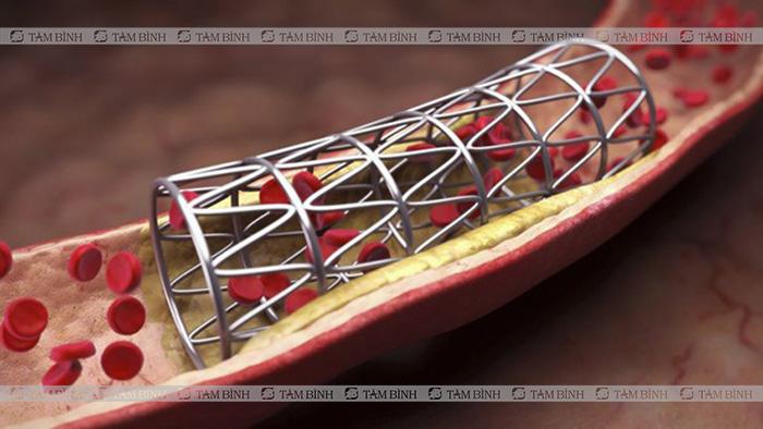 đặt stent trị tắc nghẽn mạch máu