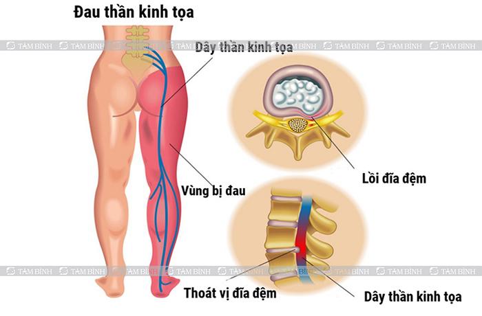 Đau dây thần kinh tọa gây tê lòng bàn chân