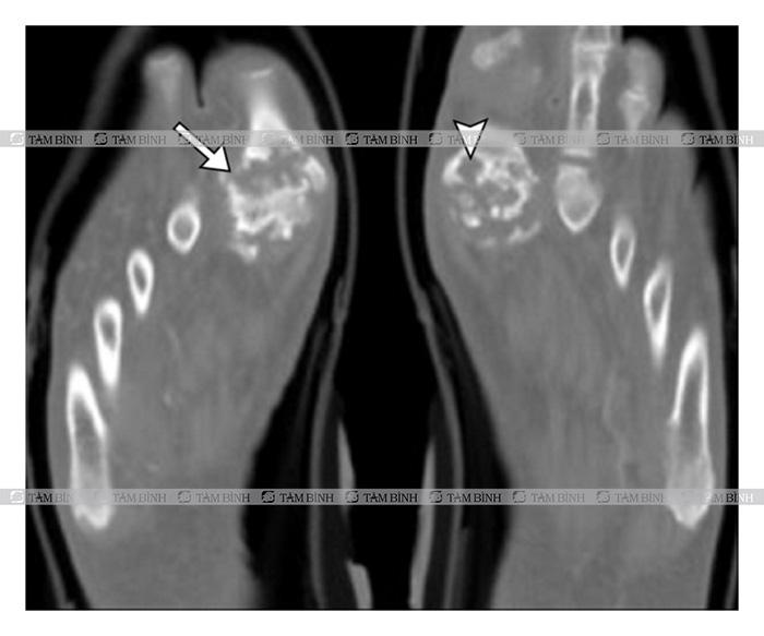 hình ảnh bệnh gout qua CT Scan