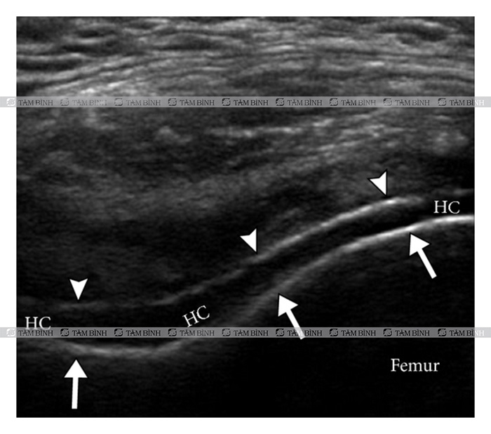 Hình ảnh bệnh gout qua siêu âm