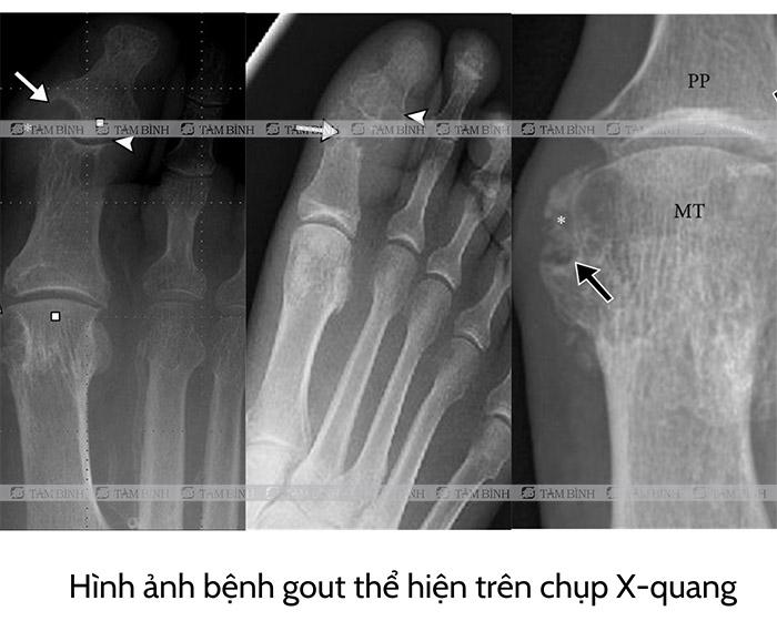 Bệnh gout trên phim X-quang