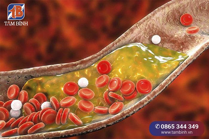 Mỡ máu gây tắc nghẽn mạch máu