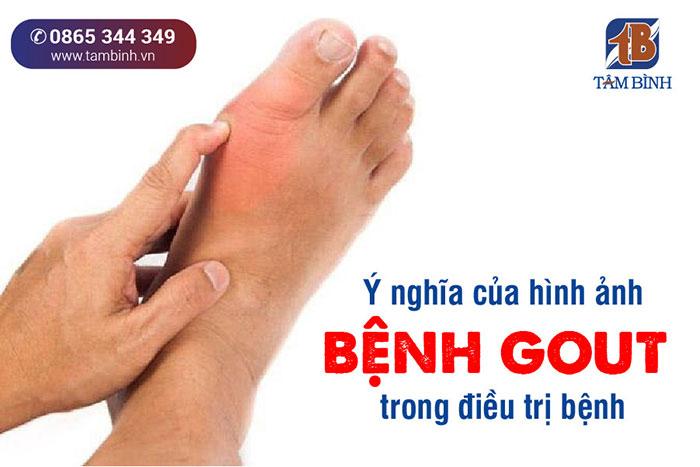 ý nghĩa của hình ảnh bệnh gout trong điều trị bệnh