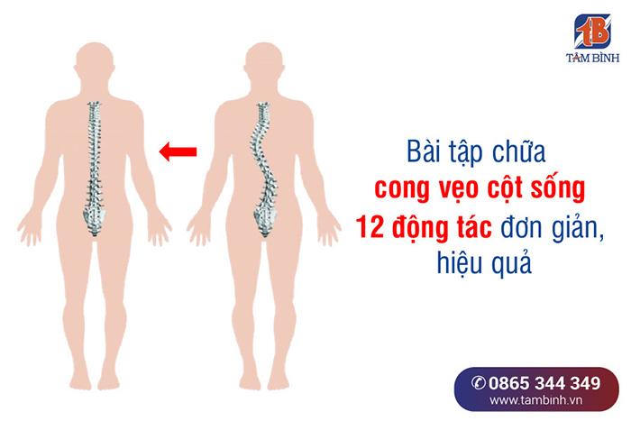 bài tập chữa cong vẹo cột sống